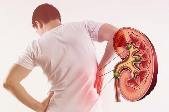 Kết hợp Đông Tây y: Giải pháp chữa thận yếu, thận hư hiệu quả